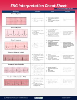 EKG Interpretation with Rhythm Strips Part 1