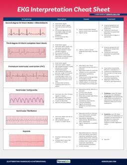 EKG Interpretation with Rhythm Strips Part 2