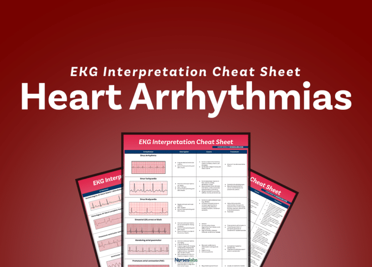 EKG Interpretation and Heart Arrhythmias Guide for Nurses