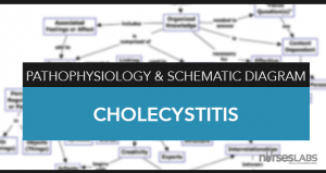 Cholecystitis Pathophysiology & Schematic Diagram