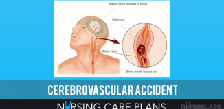 Cerebrovascular-Accident-Nursing-Care-Plans