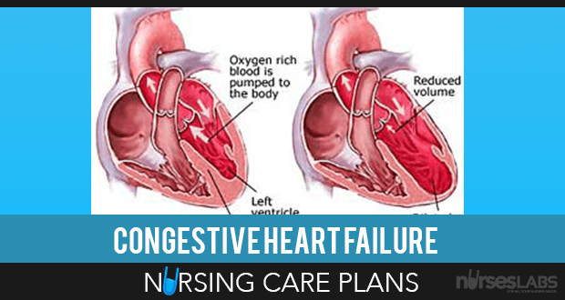 5 Congestive Heart Failure Nursing Care Plans