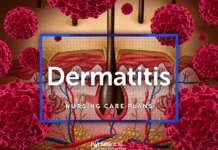 4 Dermatitis Nursing Care Plans