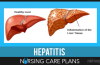 Hepatitis-Nursing-Care-Plan