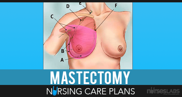 14 Mastectomy Nursing Care Plans