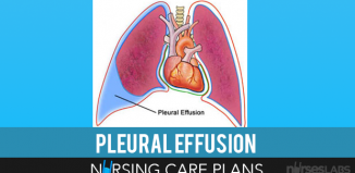 Pleural-Effusion-Nursing-Care-Plans
