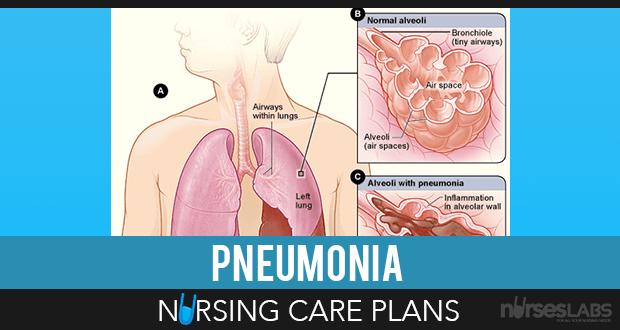 5 Pneumonia Nursing Care Plans