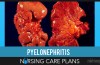 Pyelonephritis-Nursing-Care-Plans