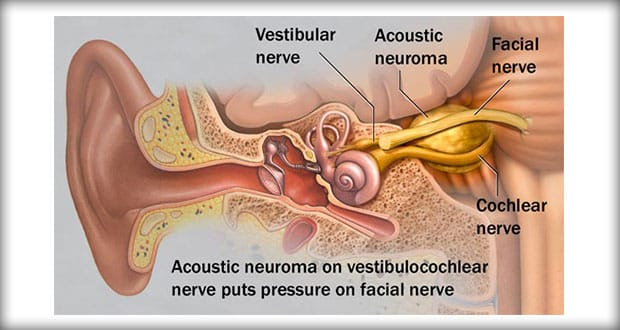 Remarkable, Symptoms of facial nerve neuroma right