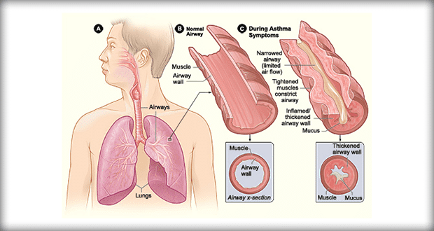 the symptoms of asthma Symptoms of a severe asthma attack can include: extreme shortness of breath chest tightness a rapid pulse sweating flared nostrils and pursed lips a need to sit upright a bluish discoloration of the lips and fingernails.