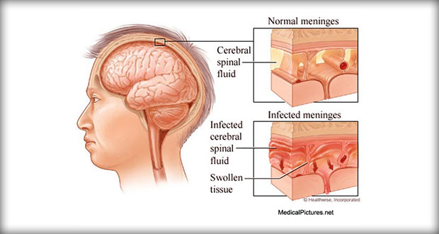 Bacterial-Meningitis