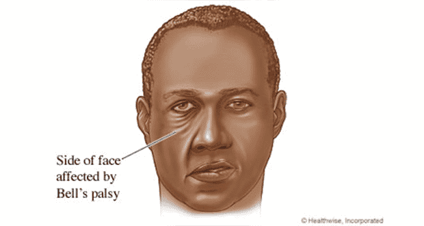 Right Facial Palsy