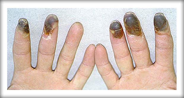 Buergers-Disease
