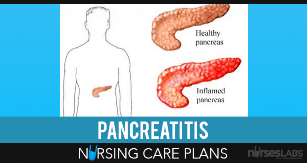 3 Pancreatitis Nursing Care Plans