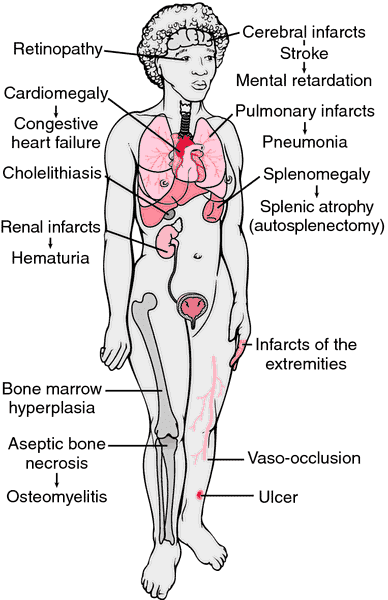 Symptoms of sickle cell anemia vary and are only somewhat based on the