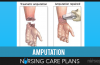 Amputation-Nursing-Care-Plans