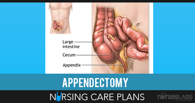 4 Appendectomy Nursing Care Plans
