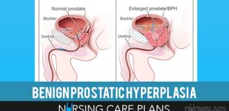 Benign-Prostatic-Hyperplasia