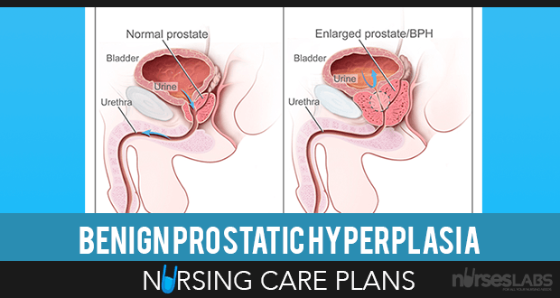5 Benign Prostatic Hyperplasia (BPH) Nursing Care Plans
