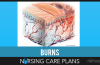 Burns-Nursing-Care-Plans