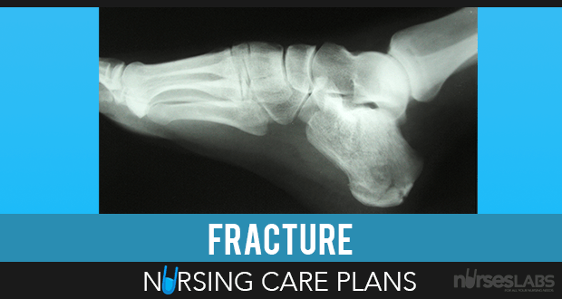 8 Fracture Nursing Care Plans