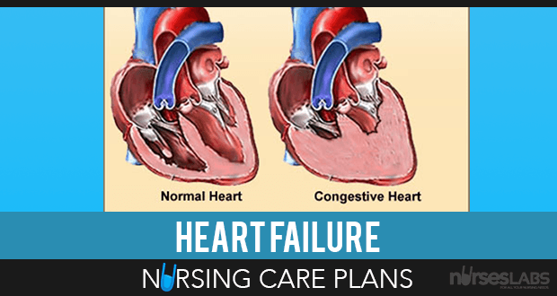 6 Heart Failure Nursing Care Plans