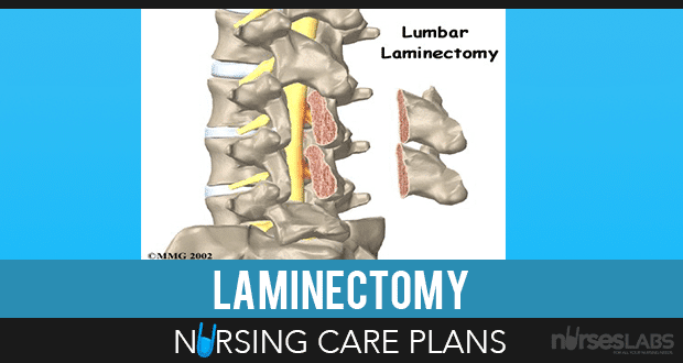 Laminectomy-Nursing-Care-Plans
