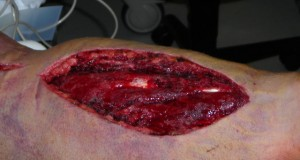 Have You Ever Seen a Fasciotomy?