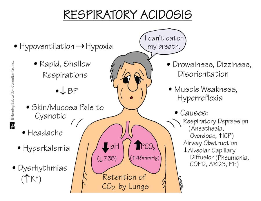 respiratory acidosis nursing management and interventions - nurseslabs, Skeleton