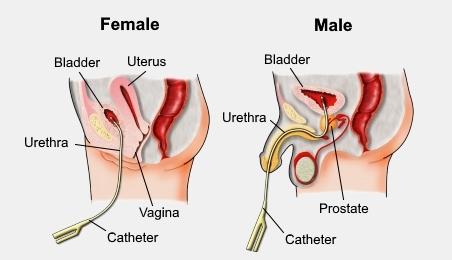 Urinary Catheterization Nursing Procedure Management