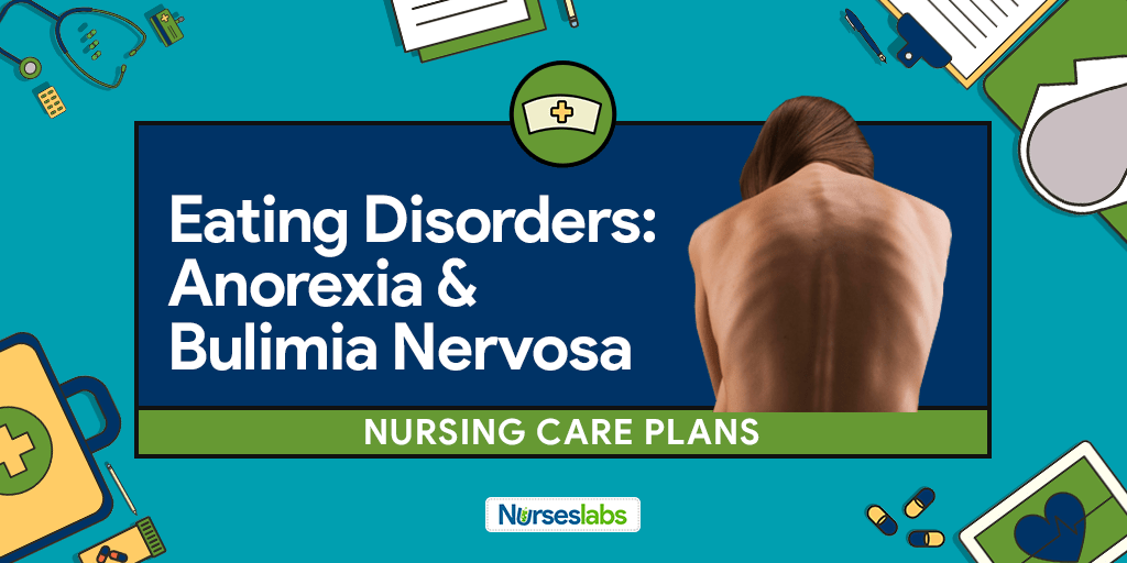 an overview of the eating disorders anorexia nervosa and bulimia nervosa Bulimia nervosa is an eating disorder characterized by the repeated rapid consumption of large amounts of food (binge eating), followed by attempts to compensate for the excess food consumed (for example, by purging, fasting, or exercising.