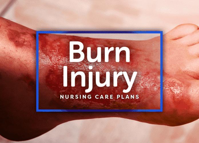 11 Burn Injury Nursing Care Plans