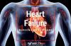 6 Heart Failure Nursing Care Plans