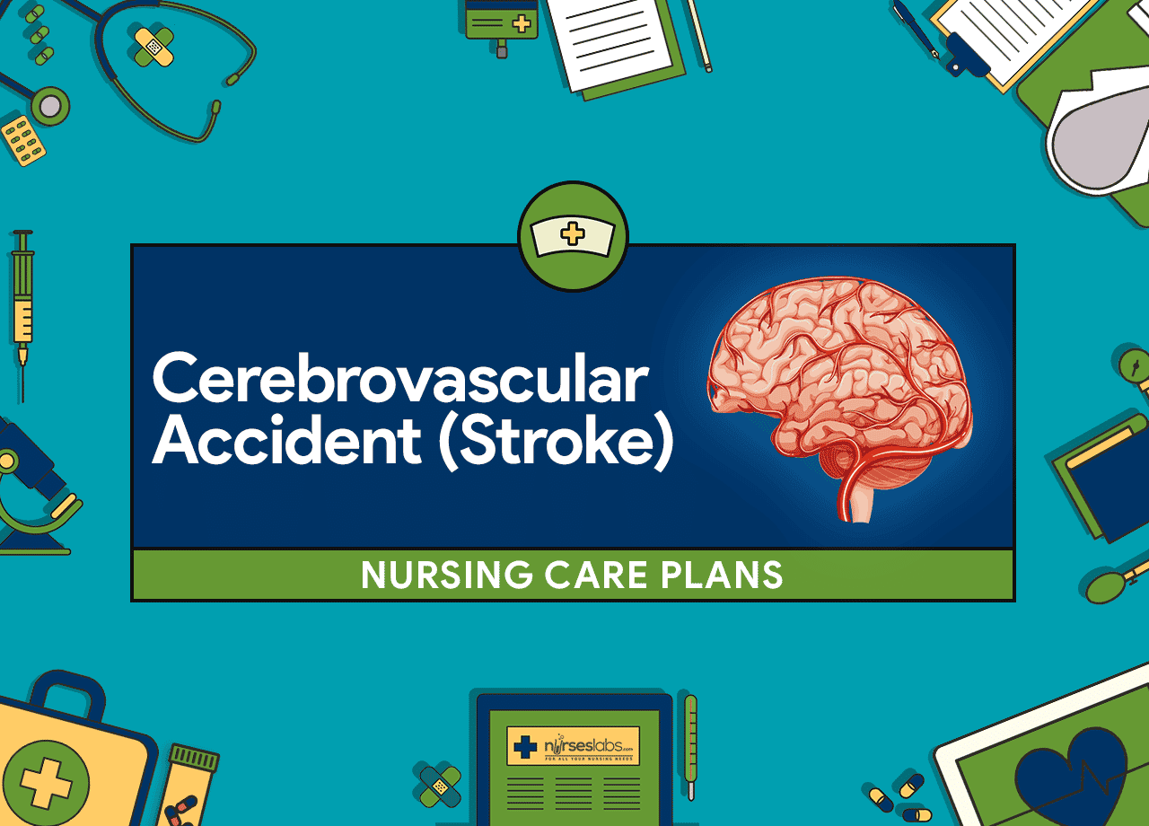 nursing case study on cerebrovascular accident Also previously called cerebrovascular accident (cva) or stroke  the european cooperative acute stroke study (ecass  infarction, in this case the anterior.