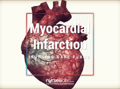 7 Myocardial Infarction Nursing Care Plans