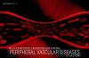 20 Questions Peripheral Vascular Disease NCLEX Exam