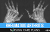 Rheumatoid-Arthritis-Nursing-Care-Plans