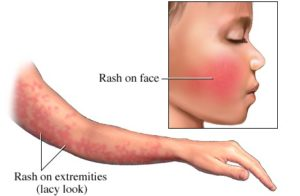 Fifth disease rash.