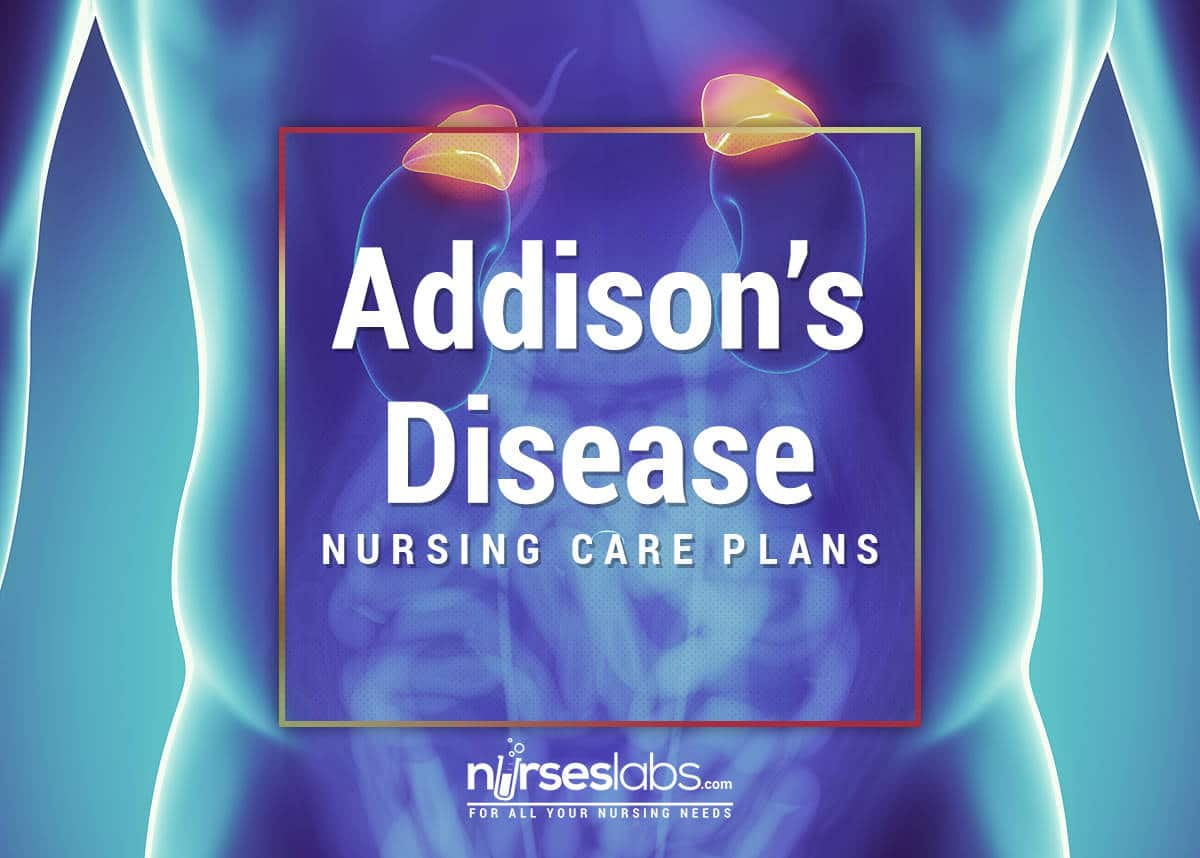 addisons disease adrenocortical hypofunction Adrenocortical hypofunction chronic adrenocortical insufficiency primary adrenal insufficiency addison's disease results from damage to the adrenal cortex.