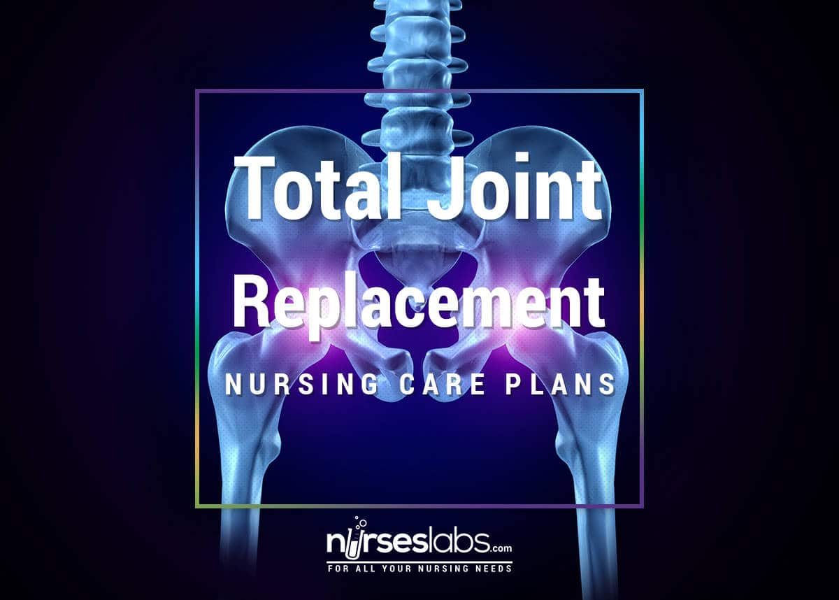 nursing care plan for left knee replacement Replacement of the right hip,and total replacement of the left hip completes a nursing history and examina- nursing care plan a client with osteoarthritis.