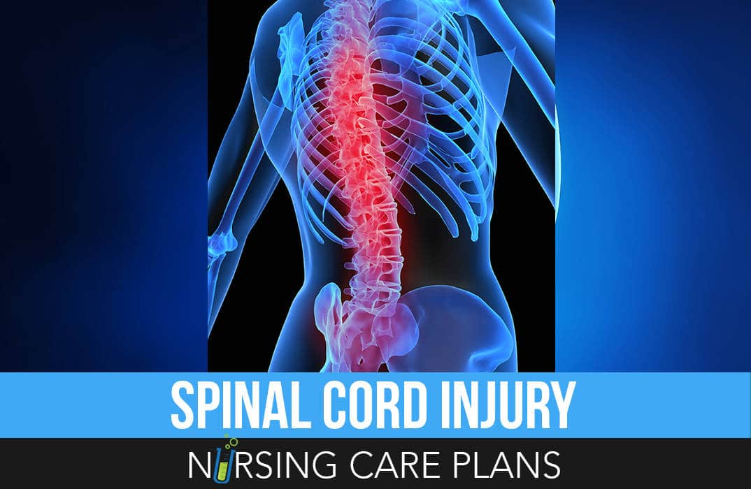 Spinal-Cord-Injury-Nursing-Care-Plans
