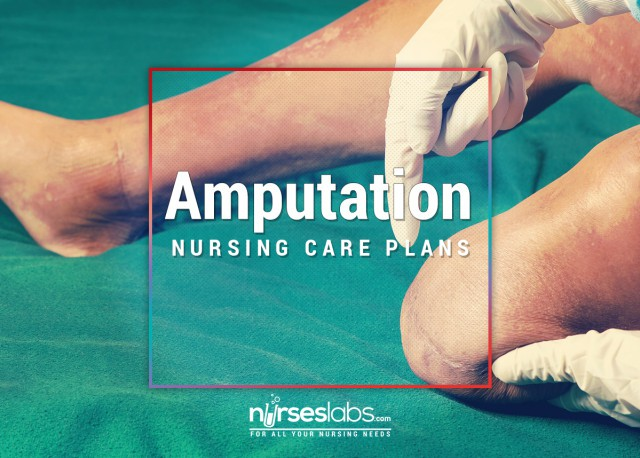nursing care of below knee amputation Amputation must be performed with great care and be segmental transcutaneous measurements of po2 in patients requiring below-the-knee amputation for.
