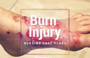 11 Burn Injury Nursing Care Plans (NCP)