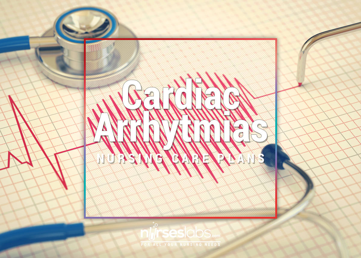 Cardiac-Arrhythmias