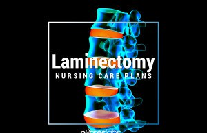 Laminectomy