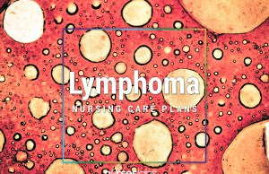 3 Lymphoma Nursing Care Plans3 Lymphoma Nursing Care Plans