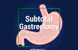 Subtotal-Gastrectomy-Nursing-Care-Plans