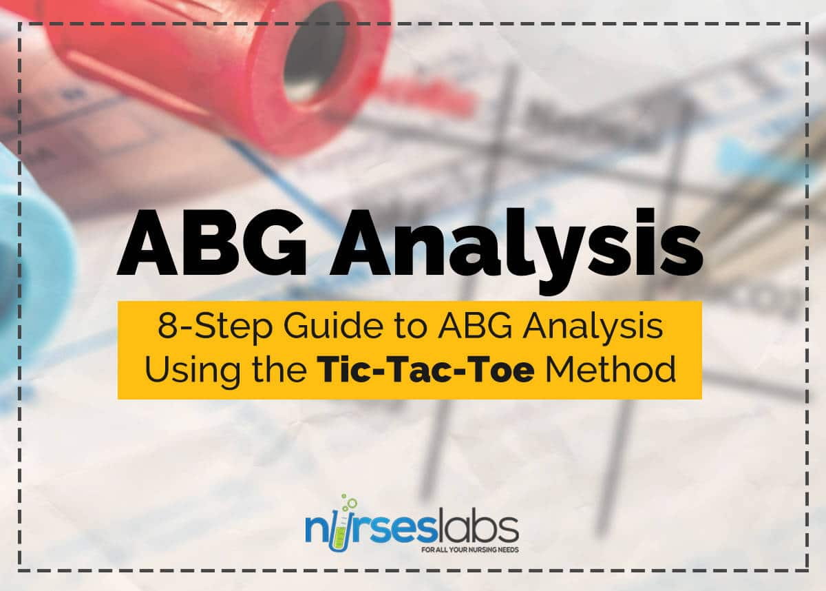 Abg 8stepguide featured