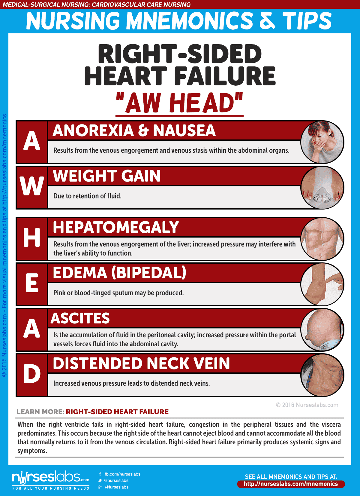 "Right-Sided Heart Failure Manifestations: ""AW HEAD"""