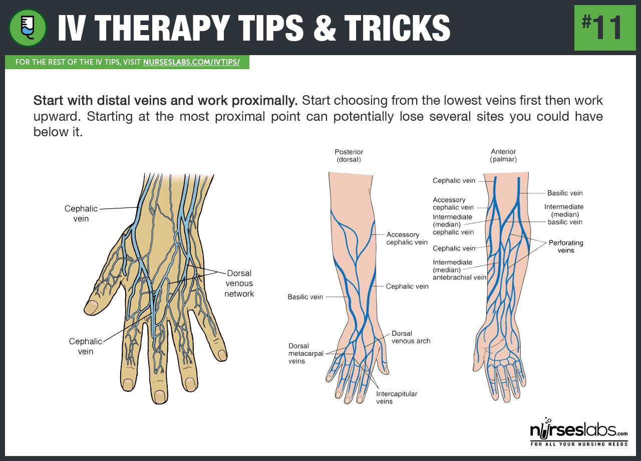 50 intravenous therapy (iv) tips and tricks for nurses, Cephalic vein